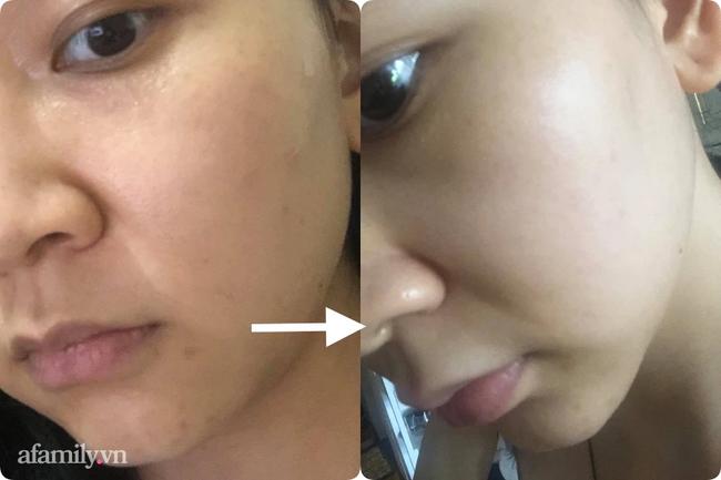 Tôi đã thoát khỏi tình trạng da xấu khủng khiếp chỉ sau 2 tuần dùng Retinal - Ảnh 6.