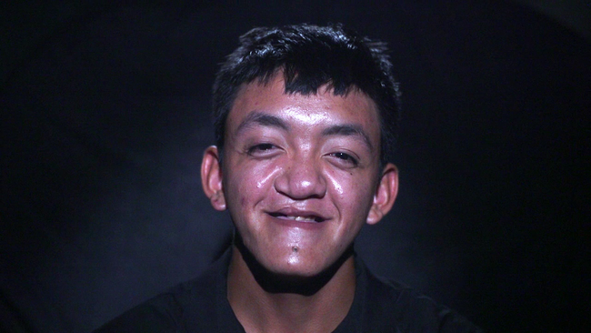 Chàng trai 17 tuổi mũi lệch, môi sứt lột xác ngoạn mục và ước mơ cảm động dành cho người cha  - Ảnh 1.