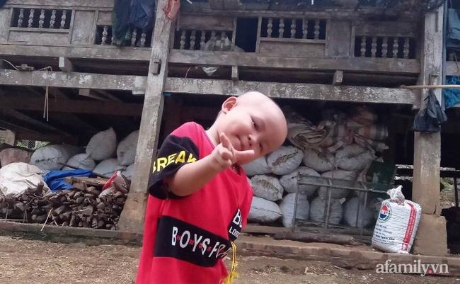Phía sau đoạn clip em bé mặc đồ bảo hộ lon ton đi theo bố hút triệu view: Vệt vàng lạ trên mắt bé và phút chết lặng của người cha khi biết con mắc bệnh ung thư - Ảnh 6.