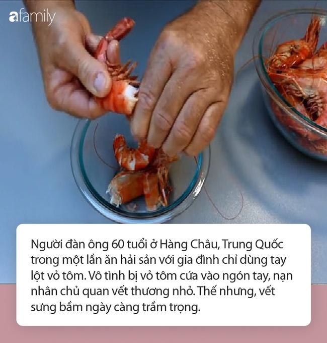 Chỉ làm duy nhất việc này trước khi ăn tôm và người đàn ông tử vong: Chuyên gia cảnh báo nguy cơ khi ăn hải sản có vỏ! - Ảnh 3.