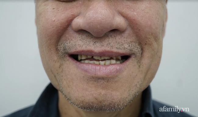 """Căn bệnh khiến cha của nhạc sĩ Dương Khắc Linh ko thể nhai đồ cứng, """"tắt nụ cười"""" phải điều trị suốt 5 tháng - Ảnh 2."""