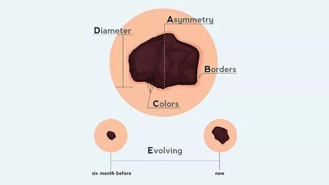 Nốt ruồi mọc ở 4 bộ phận này thì cần hết sức chú ý, có thể trở thành ung thư bất cứ lúc nào - Ảnh 4.