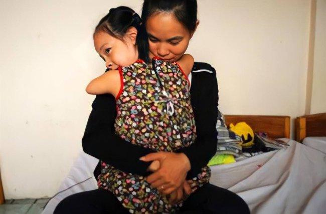 """Bác sĩ chẩn đoán """"bào thai hải cẩu"""", khuyên nên bỏ nhưng người mẹ kiên quyết sinh con, đứa trẻ sau này khiến ai cũng bất ngờ - Ảnh 4."""