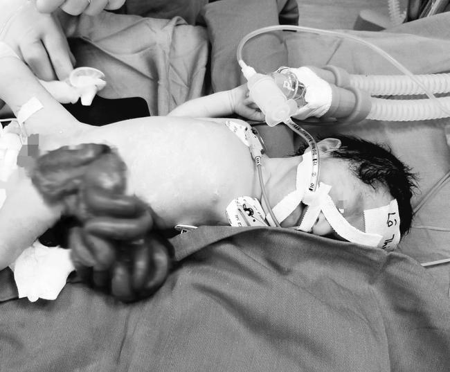 Cứu sống trẻ sơ sinh nội tạng nằm ngoài ổ bụng - Ảnh 1.