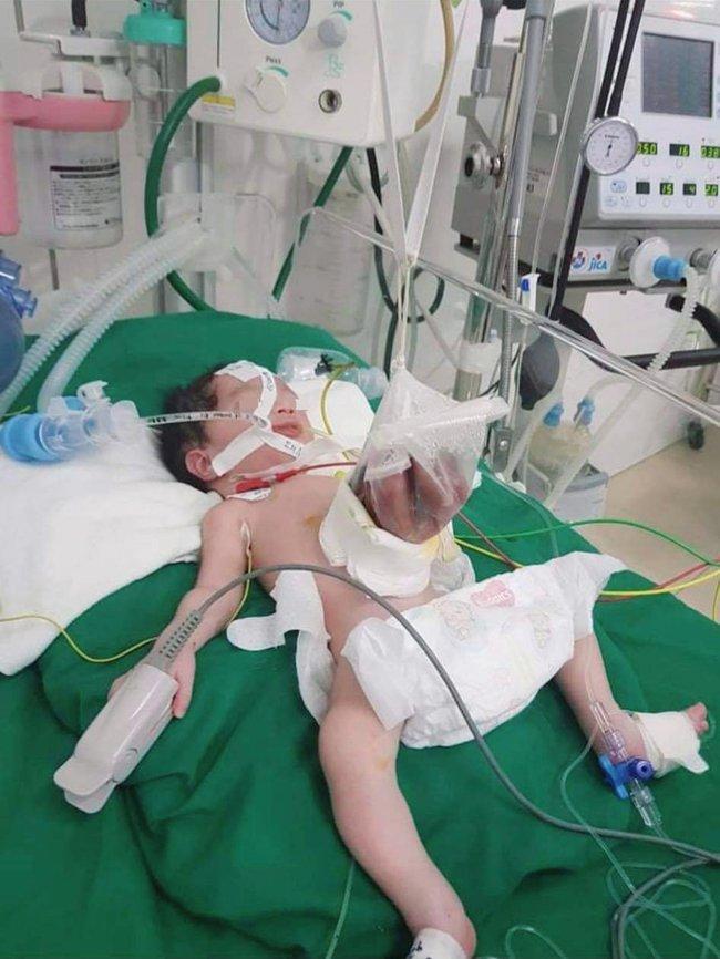 Cứu sống trẻ sơ sinh nội tạng nằm ngoài ổ bụng - Ảnh 3.