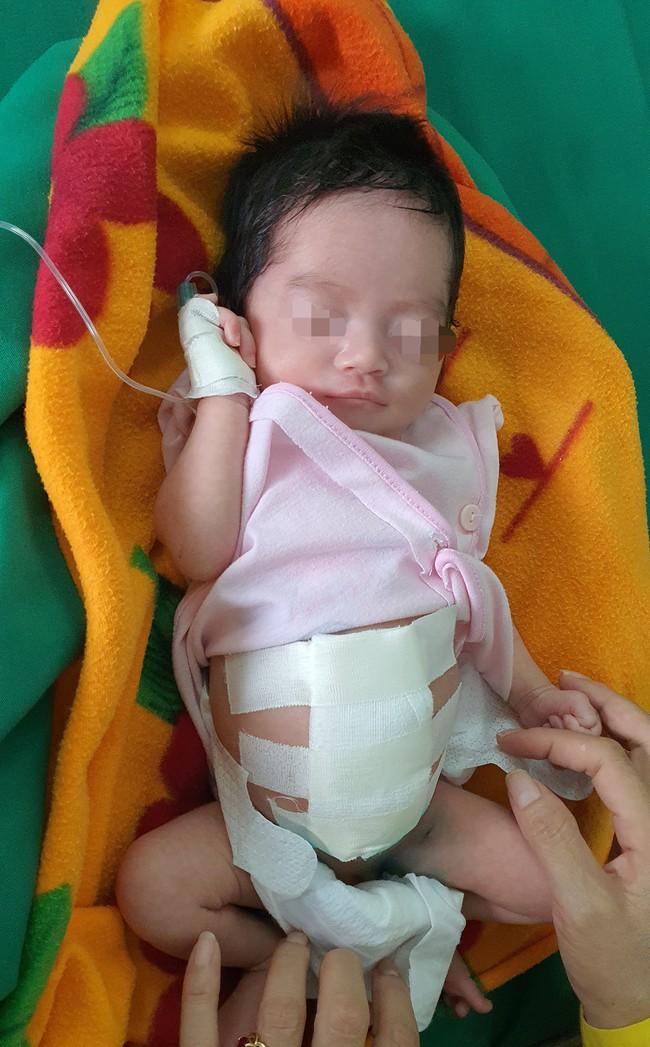 Cứu sống trẻ sơ sinh nội tạng nằm ngoài ổ bụng - Ảnh 4.