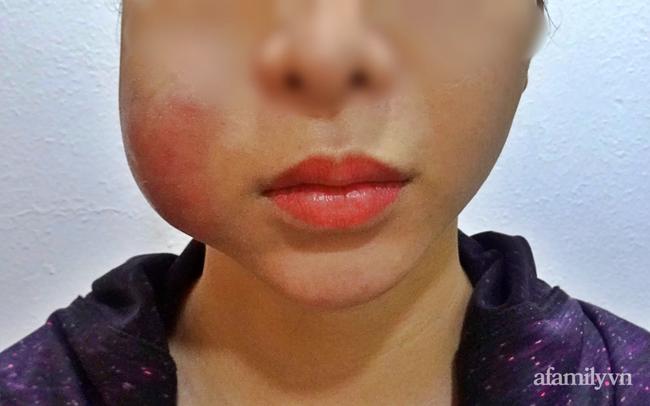 Cô gái tiêm filler bị hoại tử mặt nặng cầu cứu bệnh viện thẩm mỹ giữa lúc đang giãn cách vì dịch COVID-19 - Ảnh 1.