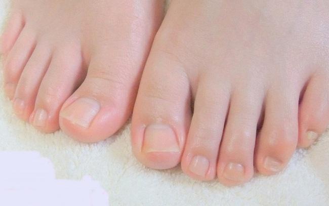 Bàn chân có 5 dấu hiệu này chứng tỏ đường huyết đang tăng cao, kiểm tra ngay sẽ giúp ngừa các biến chứng tiểu đường - Ảnh 10.