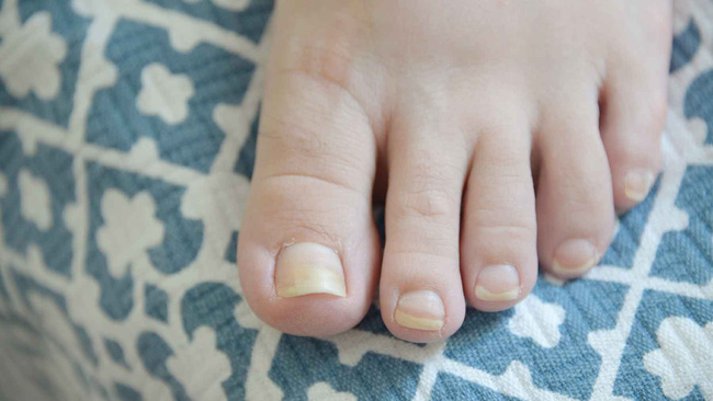 Bàn chân có 5 dấu hiệu này chứng tỏ đường huyết đang tăng cao, kiểm tra ngay sẽ giúp ngừa các biến chứng tiểu đường - Ảnh 8.