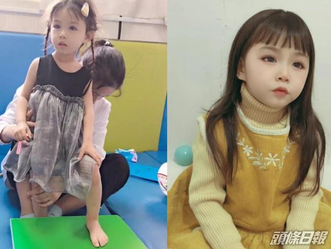 """""""Thiên thần câm lạc xuống trần gian"""": Đằng sau gương mặt xinh đẹp là bi kịch mà bé gái 5 tuổi phải gánh chịu suốt đời - Ảnh 4."""