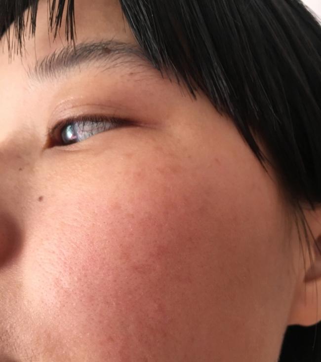 Làn da xuất hiện 5 dấu hiệu này thì chứng tỏ bạn đang bị kích ứng với mỹ phẩm đang dùng  - Ảnh 3.