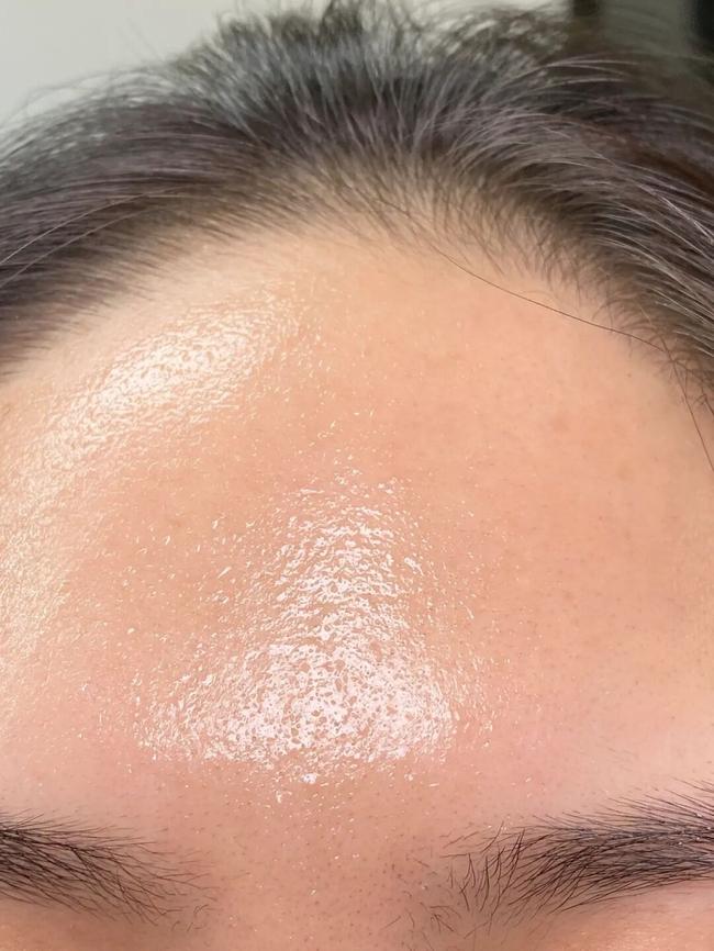 Làn da xuất hiện 5 dấu hiệu này thì chứng tỏ bạn đang bị kích ứng với mỹ phẩm đang dùng  - Ảnh 2.