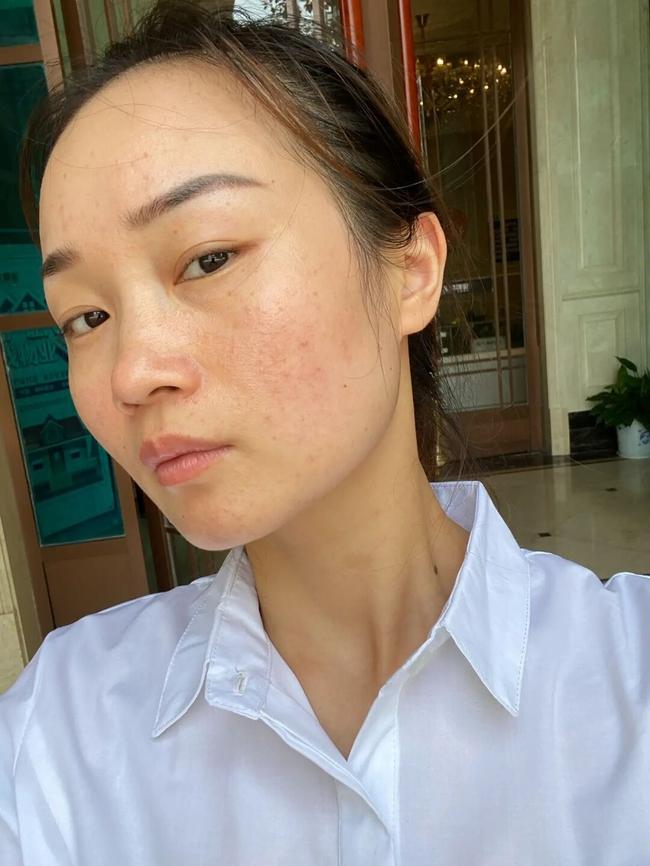 Làn da xuất hiện 5 dấu hiệu này thì chứng tỏ bạn đang bị kích ứng với mỹ phẩm đang dùng  - Ảnh 4.