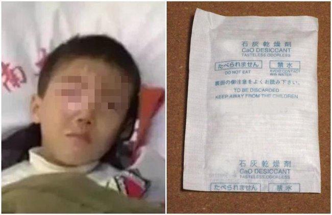 """Nhãn cầu của bé trai 8 tuổi bị """"tan chảy"""" chỉ trong 20 phút vì một thứ nhà nào cũng có, bố mẹ phải cảnh giác cao độ - Ảnh 2."""