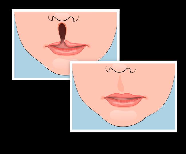 Phẫu thuật sứt môi, hở hàm ếch: Từ lưu ý đến giá cả, nơi nên thực hiện được chuyên gia chia sẻ tường tận - Ảnh 12.