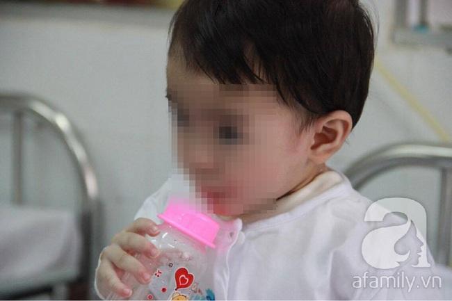 Bị muỗng đâm vào họng lúc ở nhà trẻ, bé gái 1 tuổi thủng thực quản nguy kịch - Ảnh 1.