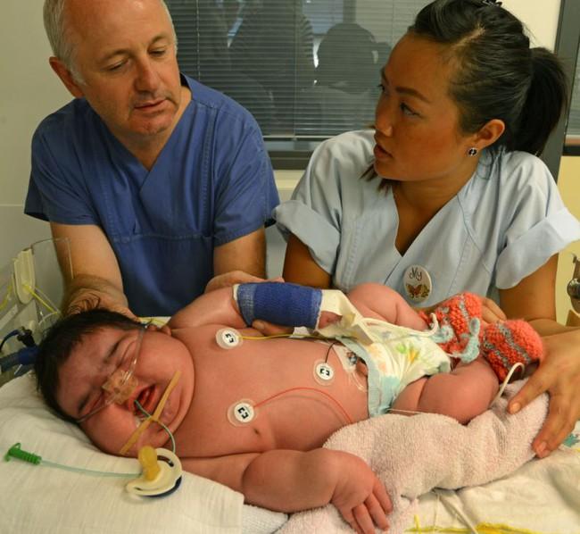 Dù đã dự đoán trước nhưng bác sĩ và bố mẹ đều sốc khi em bé này chào đời - Ảnh 2.