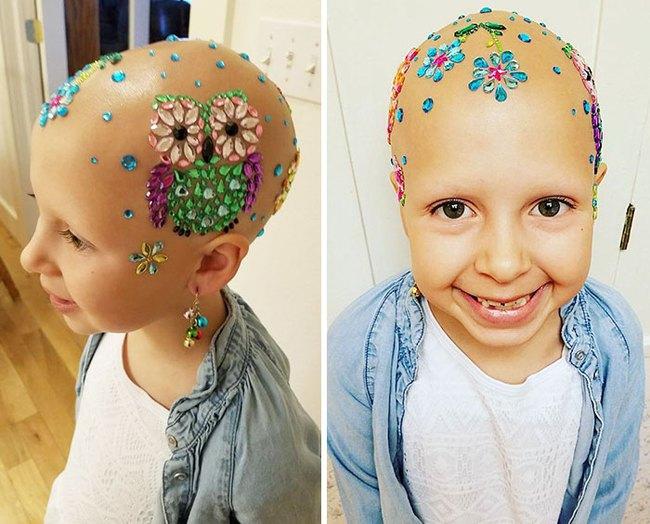 Đầu trọc lốc không có 1 sợi tóc, cô bé 7 tuổi này vẫn có cách khiến mình trở nên rực rỡ - Ảnh 1.