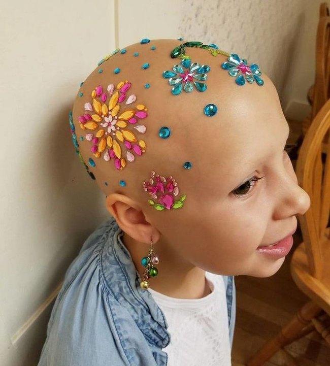 Đầu trọc lốc không có 1 sợi tóc, cô bé 7 tuổi này vẫn có cách khiến mình trở nên rực rỡ - Ảnh 2.
