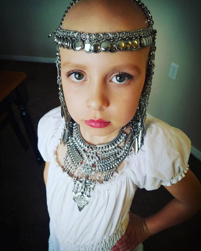 Đầu trọc lốc không có 1 sợi tóc, cô bé 7 tuổi này vẫn có cách khiến mình trở nên rực rỡ - Ảnh 3.
