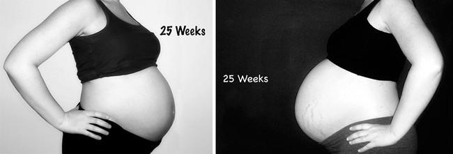 Nếu bạn tò mò mang thai đơn và song thai khác nhau thế nào, hãy xem những hình ảnh này - Ảnh 5.