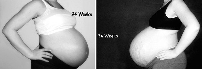 Nếu bạn tò mò mang thai đơn và song thai khác nhau thế nào, hãy xem những hình ảnh này - Ảnh 6.