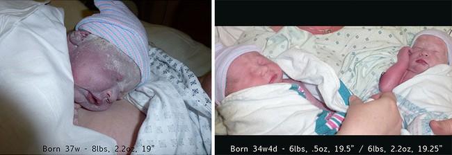 Nếu bạn tò mò mang thai đơn và song thai khác nhau thế nào, hãy xem những hình ảnh này - Ảnh 7.
