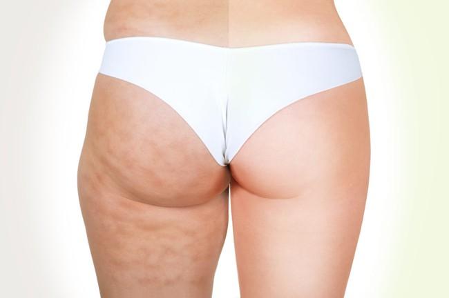 Phụ nữ nào cũng đều dùng 2 nguyên liệu quen thuộc để đánh bật tình trạng sần da, giờ đến bạn áp dụng - Ảnh 1.