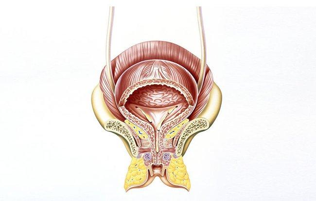 Là phụ nữ mà có những triệu chứng này, khả năng bạn bị ung thư bàng quang cực lớn - Ảnh 1.