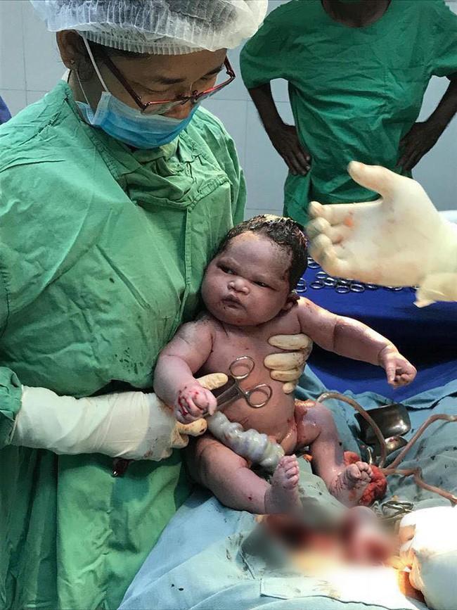 Bức ảnh gây bão mạng: Em bé sơ sinh đang ngủ ngon thì bị bác sĩ đưa ra khỏi bụng mẹ trong ca sinh mổ - Ảnh 2.