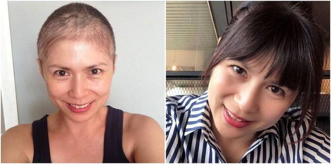 Căn bệnh ung thư này khiến nhiều chị em sợ hãi nhưng lại bị 3 người phụ nữ nổi tiếng ở Singapore đánh gục - Ảnh 2.