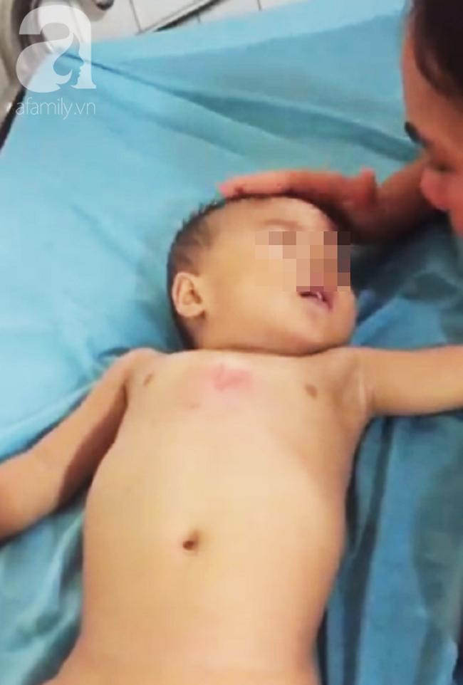 TP. HCM: Mẹ bận bán rau trước nhà, con trai 19 tháng tuổi chúi đầu vào thùng nước ngưng tim - Ảnh 2.