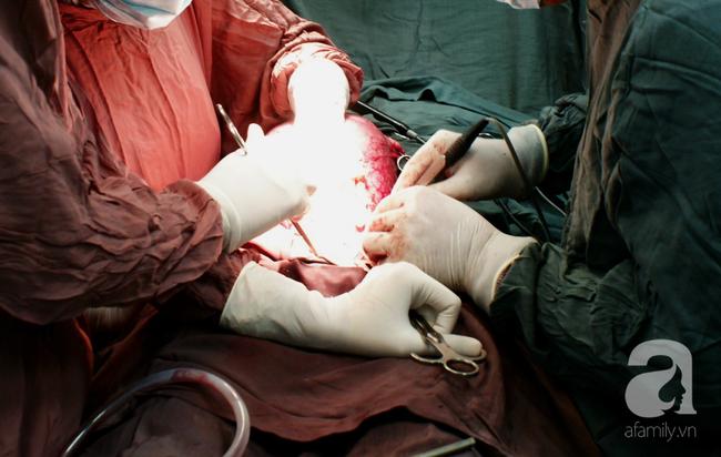 Cảnh báo: Những biến chứng này khiến nhiều phụ nữ Việt suýt mất con khi mang thai, thậm chí dẫn đến vô sinh - Ảnh 5.