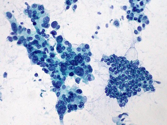 Cẩn trọng với những bệnh nguy hiểm chết người nhưng lại không có triệu chứng rõ ràng và dễ bị bỏ qua - Ảnh 7.