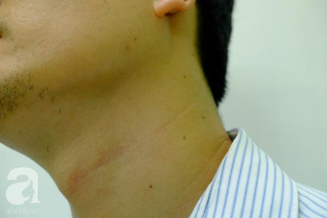 Từ 1 vết loét nhỏ trong miệng, chàng trai 19 tuổi bàng hoàng khi biết mình là bệnh nhân trẻ nhất bị ung thư lưỡi - Ảnh 9.
