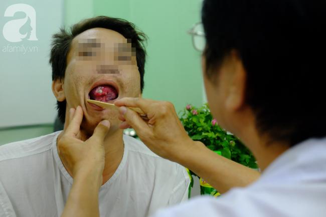 Từ 1 vết loét nhỏ trong miệng, chàng trai 19 tuổi bàng hoàng khi biết mình là bệnh nhân trẻ nhất bị ung thư lưỡi - Ảnh 7.