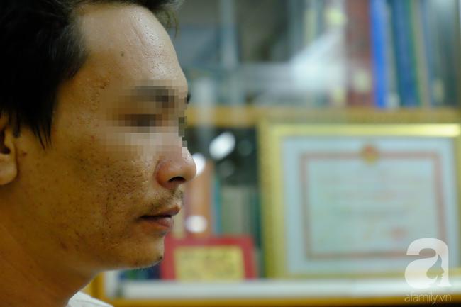 Từ 1 vết loét nhỏ trong miệng, chàng trai 19 tuổi bàng hoàng khi biết mình là bệnh nhân trẻ nhất bị ung thư lưỡi - Ảnh 8.