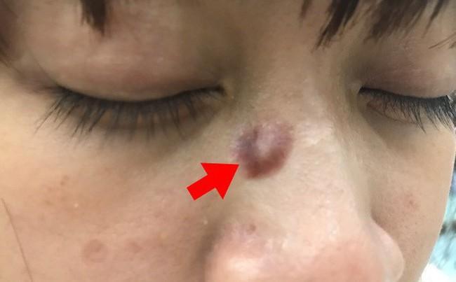 Ung thư từ nốt ruồi rất nguy hiểm, di căn nhanh: Những dấu hiệu của nốt ruồi cần cảnh giác - Ảnh 2.