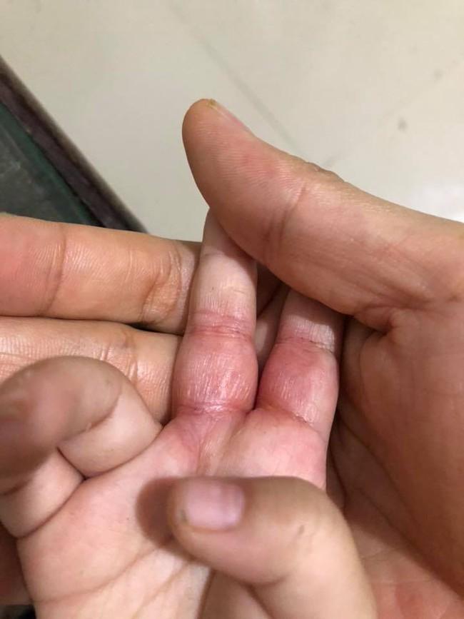 Bò chơi quanh nồi cơm điện, bé 1 tuổi bị bỏng hơi để lại sẹo co rút các ngón tay - Ảnh 5.