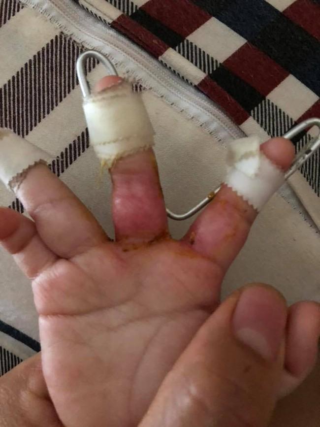 Bò chơi quanh nồi cơm điện, bé 1 tuổi bị bỏng hơi để lại sẹo co rút các ngón tay - Ảnh 4.