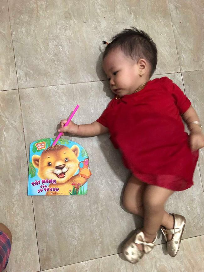 Bò chơi quanh nồi cơm điện, bé 1 tuổi bị bỏng hơi để lại sẹo co rút các ngón tay - Ảnh 7.