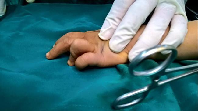 Bò chơi quanh nồi cơm điện, bé 1 tuổi bị bỏng hơi để lại sẹo co rút các ngón tay - Ảnh 9.