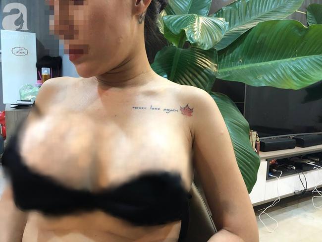 Em kết nghĩa của ca sĩ Quách Tuấn Du bị vỡ túi ngực 2.000 USD trên máy bay, bác sĩ thẩm mỹ biến mất - Ảnh 2.