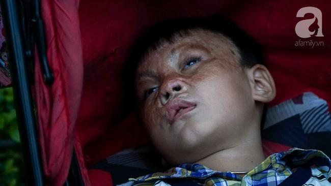 Giấc mơ bên chiếc xe nôi của người mẹ có con trai bỏng mắt do cháy nhà, 2 năm trời không thể khép mi ngủ - Ảnh 7.