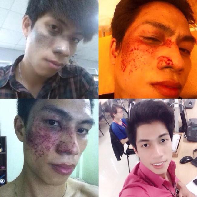 Không xin được việc vì vết chàm lớn trên gương mặt, thanh niên quyết tâm lột xác diện mạo và cái kết - Ảnh 2.