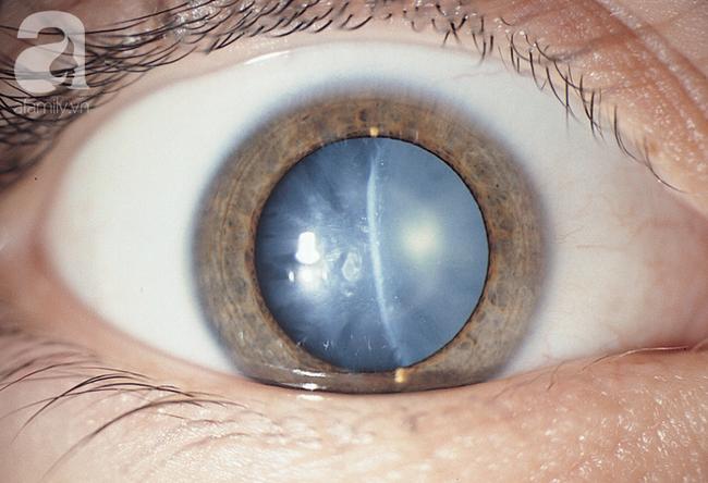 Ăn ngọt và lười vận động, coi chừng bị mù lòa: Cảnh báo biến chứng của căn bệnh rất nhiều người mắc - Ảnh 1.