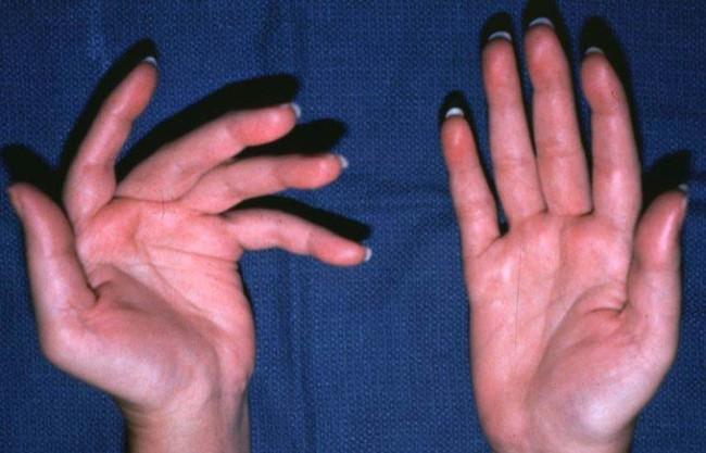 Mắc bệnh này mà không biết, nữ diễn viên tiết lộ tôi sắp thành người tàn tật rồi: Cảnh báo căn bệnh khó chẩn đoán - Ảnh 4.