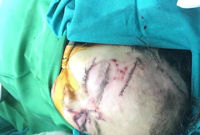 Nghệ An: Bé gái hơn 2 tuổi bị chó nhà cắn nát vùng mặt - Ảnh 1.