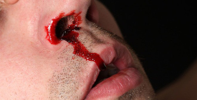 Người đàn ông bị xuất huyết não suýt mất mạng chỉ vì chủ quan nghĩ rằng cơn đau đầu mình gặp là do cảm lạnh - Ảnh 3.