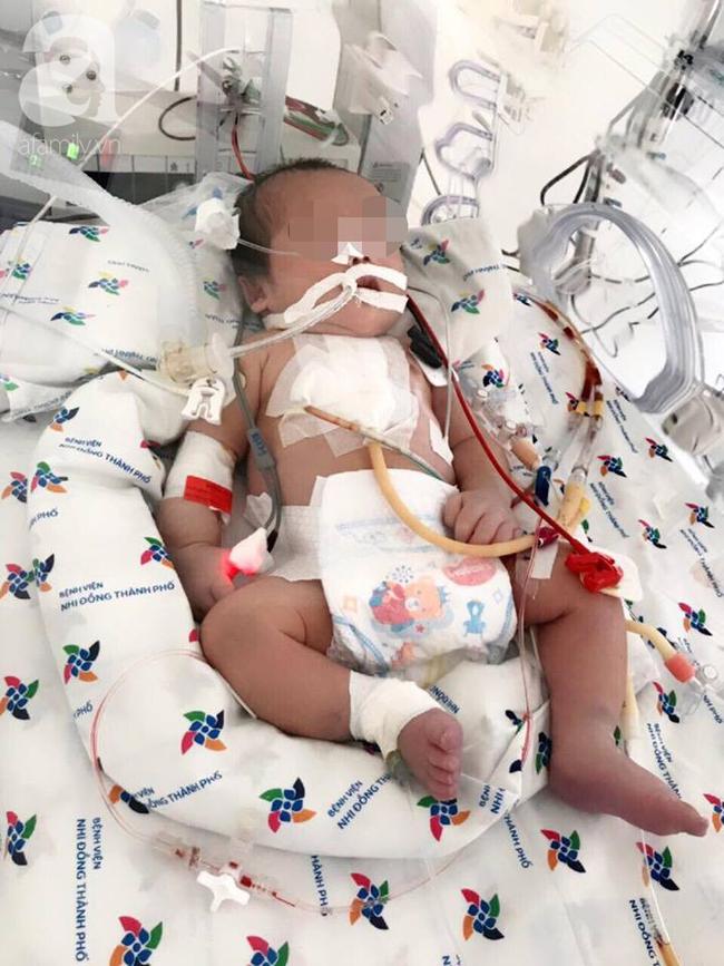 Lần đầu tiên tại miền Nam, bác sĩ dùng phương pháp này đưa bé trai bị bệnh tim nặng từ cõi chết trở về - Ảnh 4.
